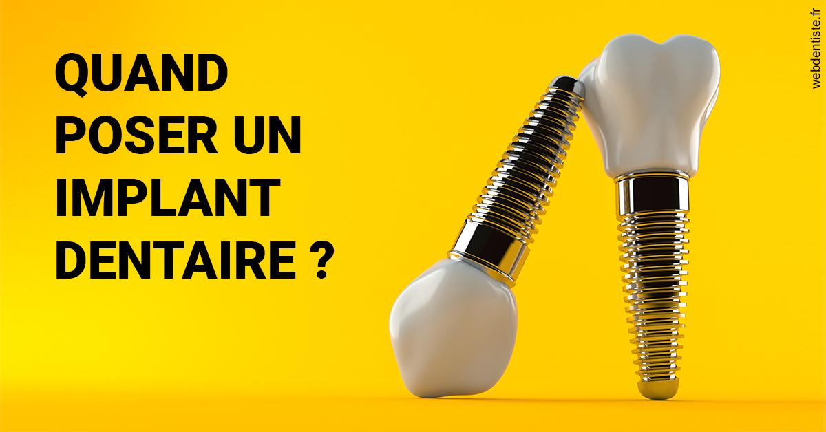 https://dr-jan-patrick.chirurgiens-dentistes.fr/Les implants 2