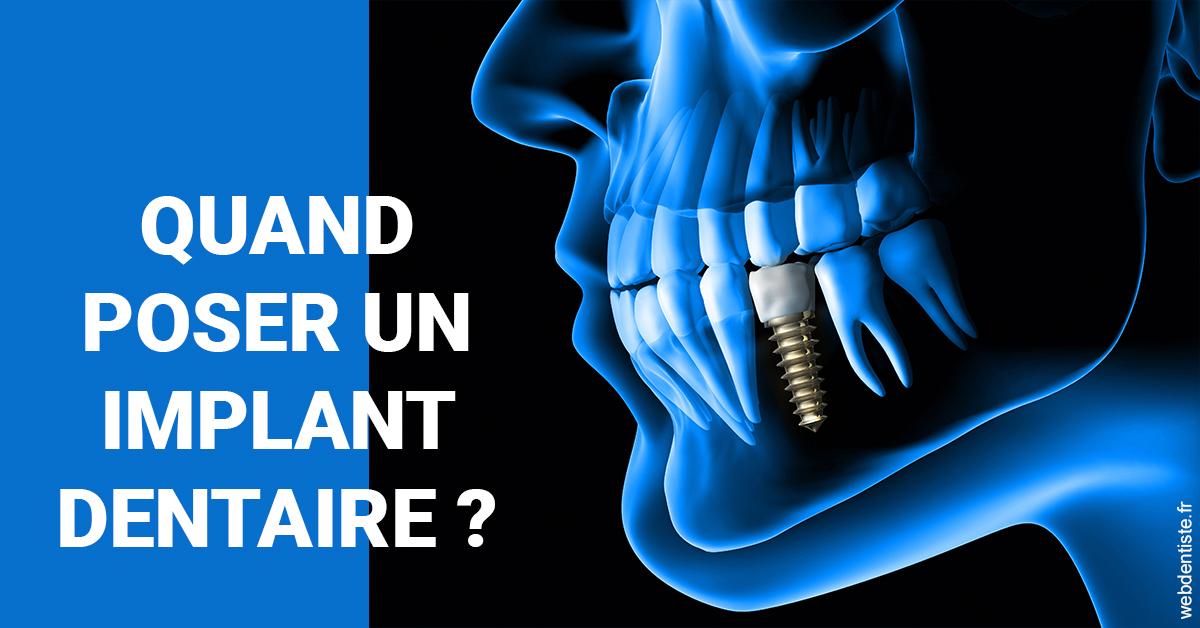 https://dr-jan-patrick.chirurgiens-dentistes.fr/Les implants 1